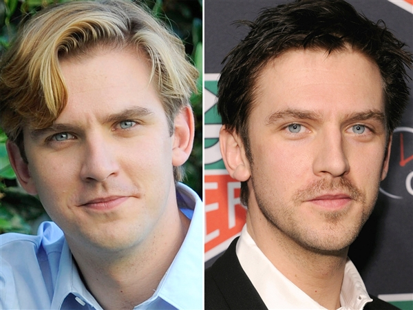 Dan Stevens old vs. new look